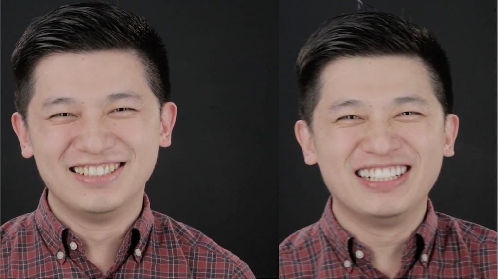 沈志容醫師的瓷牙貼片親身經歷-裝上模擬的牙齒貼片前後比較照片