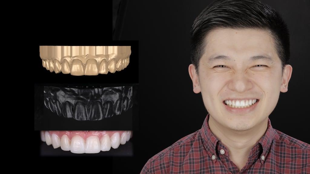 沈志容醫師的瓷牙貼片親身經歷-透過DSD數位微笑分析流程試戴笑容