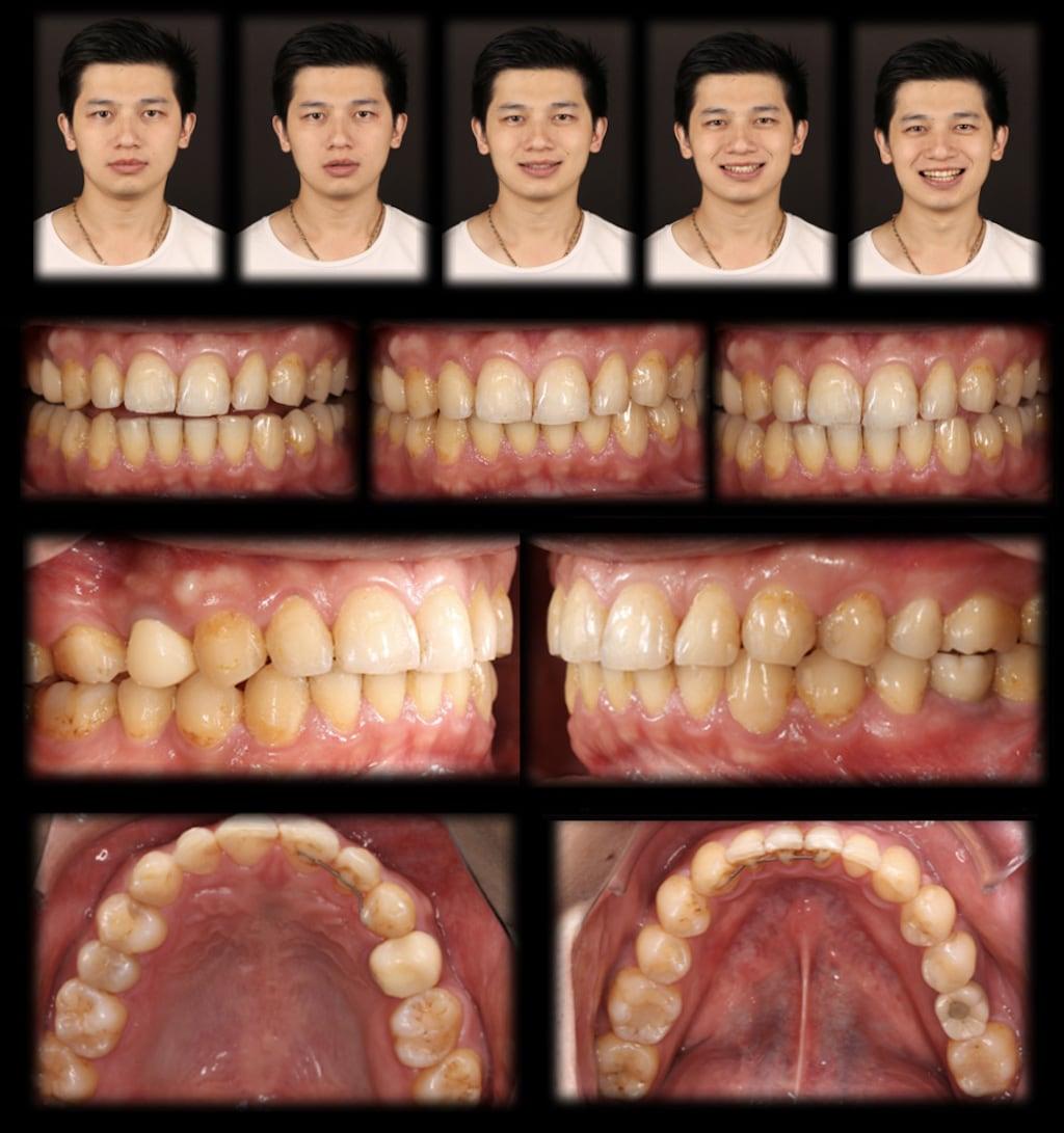 沈志容醫師的瓷牙貼片親身經歷-DSD數位微笑分析前需拍攝各角度笑容與牙齒照