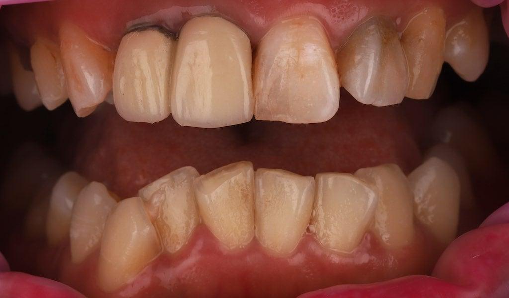 上下排牙齒排列嚴重不整-必須先經過矯正治療再用貼片改善顏色-牙齒美白推薦必看