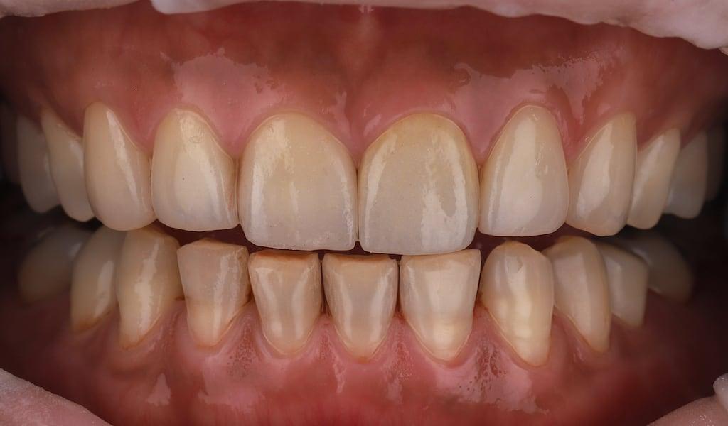 使用上排瓷牙貼片便修復因四環黴素染色問題-牙齒美白推薦必看