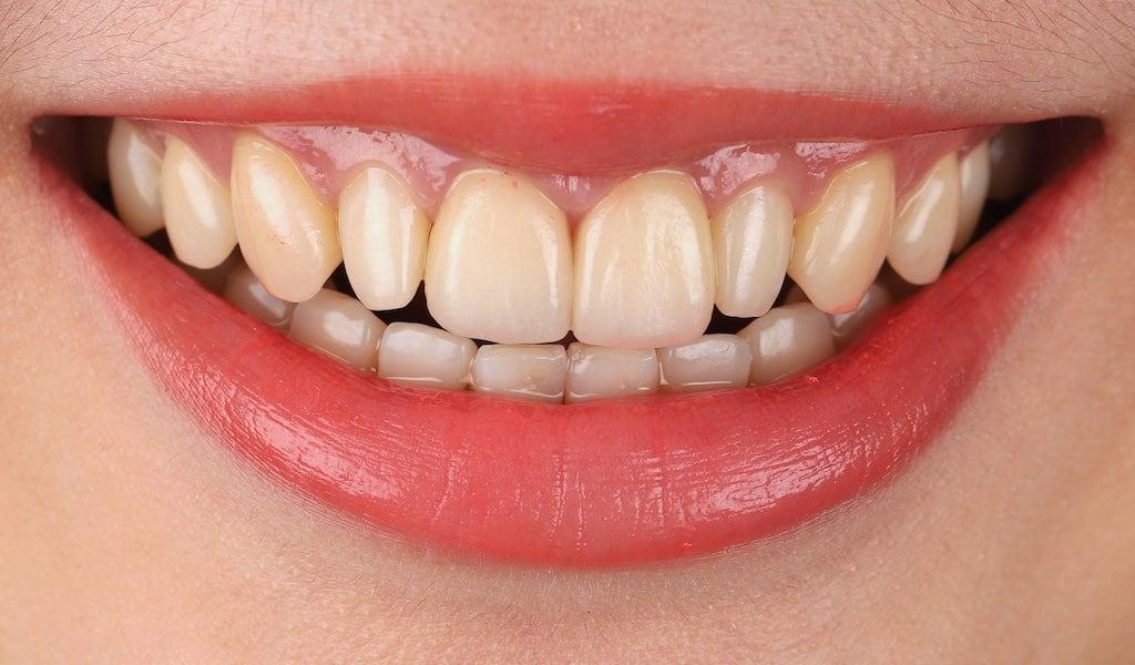 僅做二顆門牙的瓷牙貼片-當天修復蛀牙與破損-改善型態與美觀-牙齒美白推薦必看