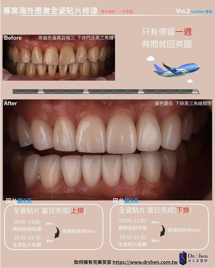 前牙美學專家-沈志容醫師推薦案例-倫敦來回一周完成-Instagram1