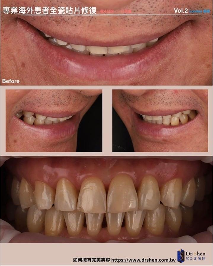 前牙美學專家-沈志容醫師推薦案例-倫敦來回一周完成-Instagram2