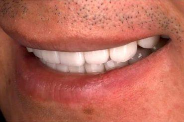 牙齒黃的Marco特別從倫敦回台做陶瓷貼片