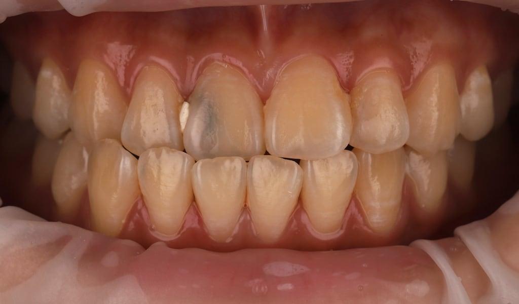 右側正常咬合-左側反咬咬合-牙齒美白推薦必看