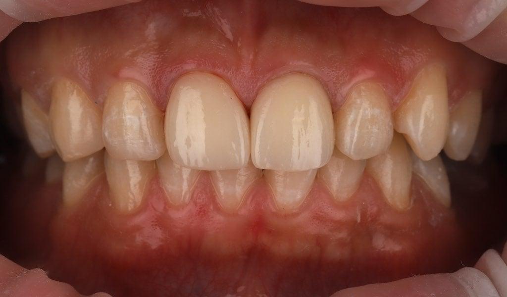 右側門牙做根管治療後採用全瓷冠-左側用瓷牙貼片修正-牙齒美白推薦必看