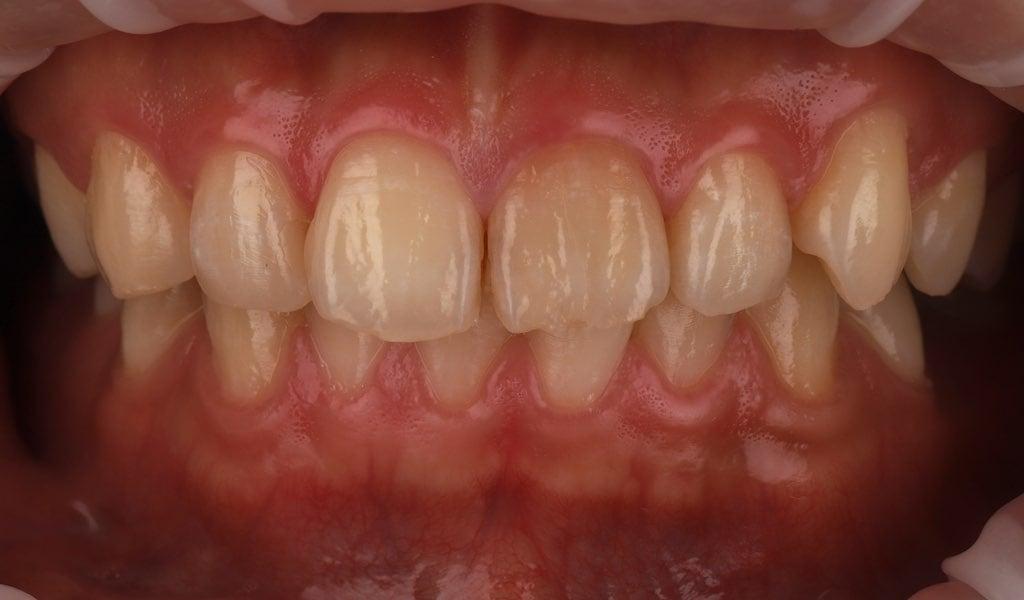 右側門牙顏色明顯變暗且邊緣破損-牙齒美白推薦必看