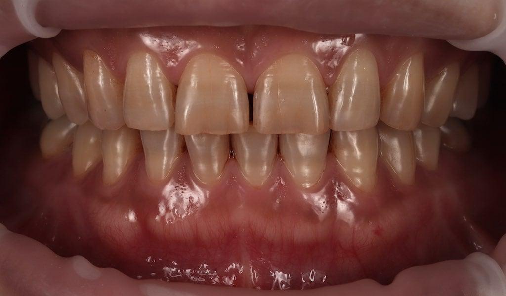 因四環黴素染色-於牙齒表面有帶狀染色-牙齒美白推薦必看