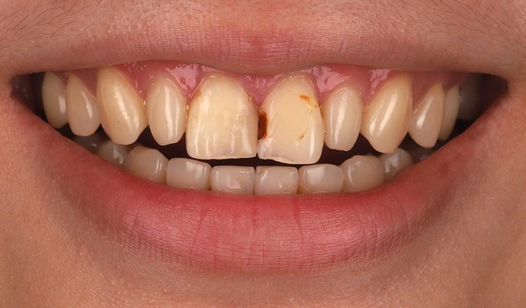 因門牙蛀牙且邊緣破損-可用瓷牙貼片修復-牙齒美白推薦必看
