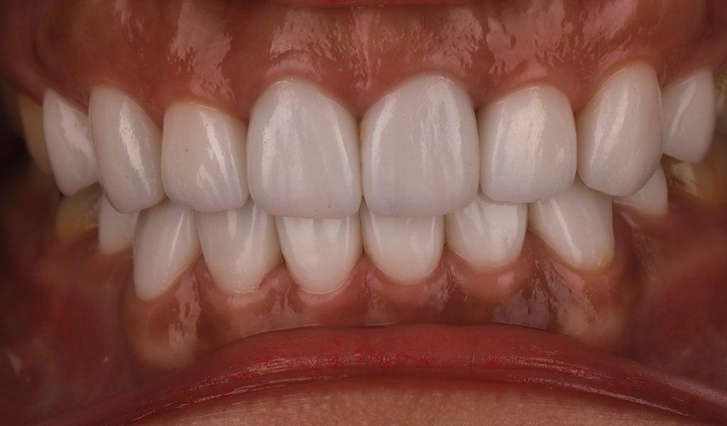 將原本舊假牙更換為全瓷冠-與瓷牙貼片完整改善美觀-牙齒美白推薦必看