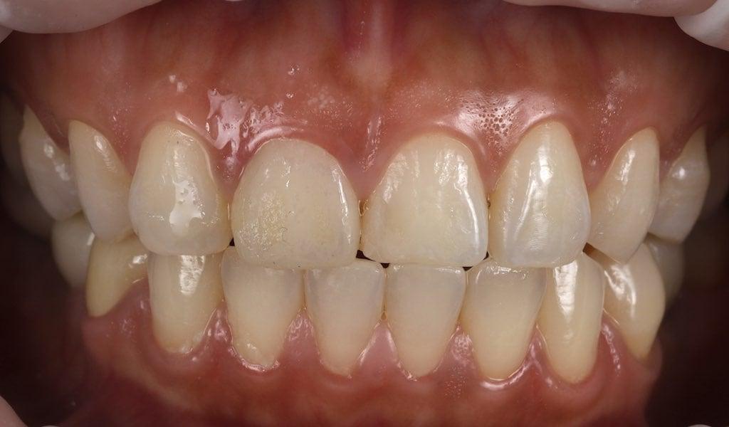 將舊傳統燒瓷假牙更換為臨時假牙-牙齒美白推薦必看
