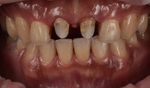 必須先拆除兩顆舊假牙並檢查牙齒-若正常即可當日完成瓷牙貼片-牙齒美白推薦必看
