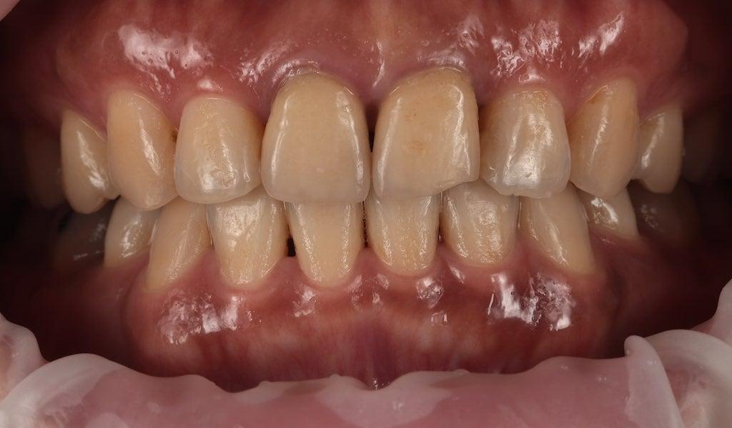 正中門牙有兩顆舊有傳統假牙-邊緣已破損且有縫-牙齒美白推薦必看