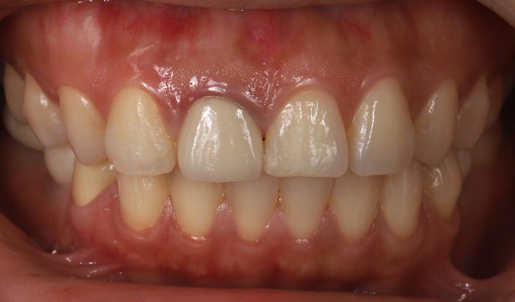牙齦高度不對稱-且左側的舊傳統燒瓷假牙已邊緣發黑-牙齒美白推薦必看