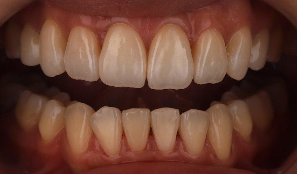 用微創方式製作瓷牙貼片改善外型及顏色-牙齒美白推薦必看