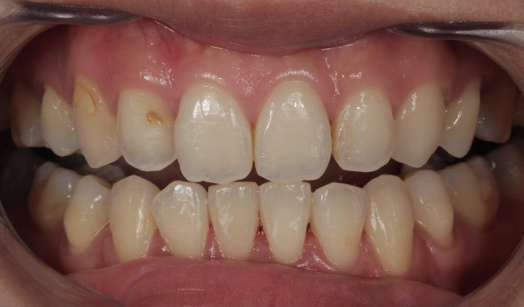經過矯正過後的牙齒狀況-若顏色外型不滿意可透過瓷牙貼片修正-牙齒美白推薦必看