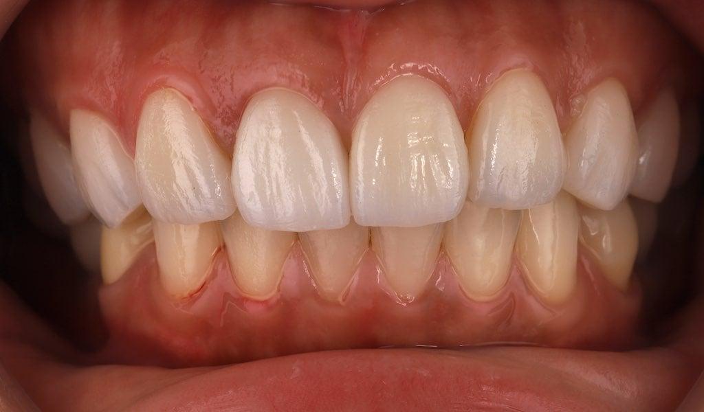 調整牙齦後再以全瓷冠及瓷牙貼片重建-完美修復微笑曲線-牙齒美白推薦必看