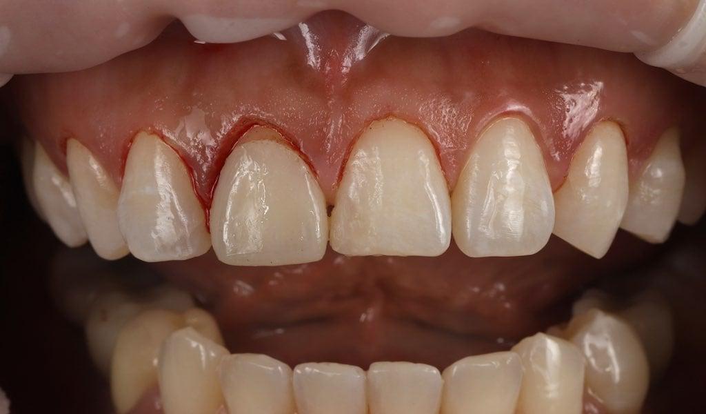 進行牙齦雷射微創牙齒美容手術-修正牙齦位置-當天就可正常飲食-牙齒美白推薦必看