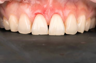 美女部落客克萊兒的牙齒美白心得-part 3.牙冠增長術