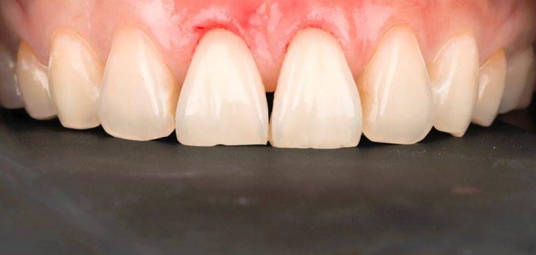 前牙美學專家-沈志容醫師推薦案例-網紅克萊兒牙齒美白全記錄-做完牙冠增長術-用雷射所以不會流血