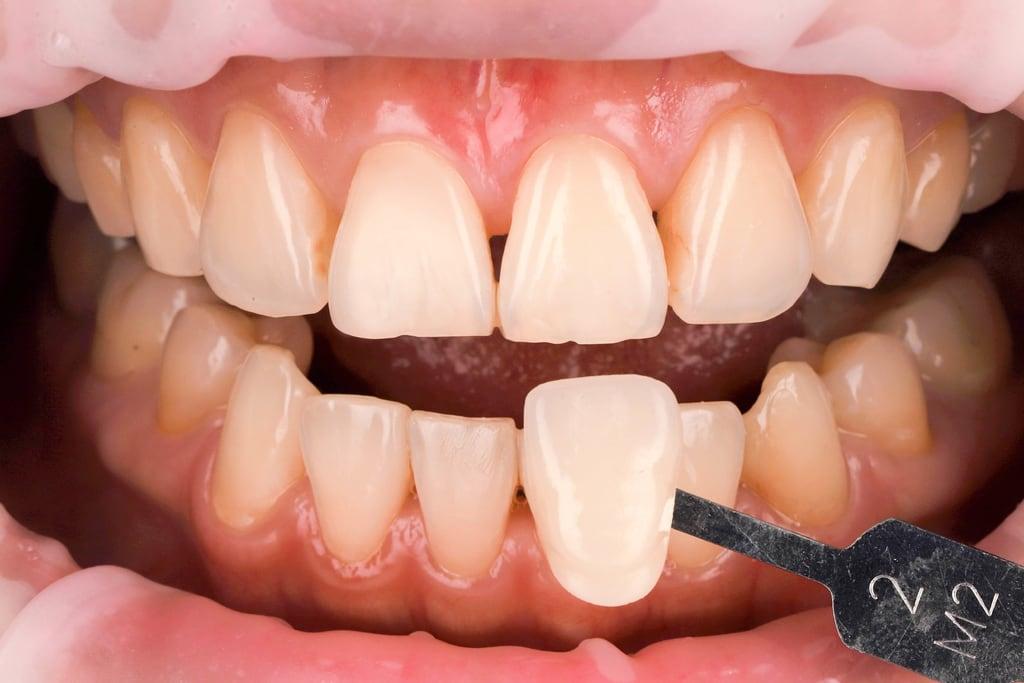前牙美學專家-沈志容醫師推薦案例-網紅克萊兒牙齒美白全記錄-冷光美白前牙齒是M2