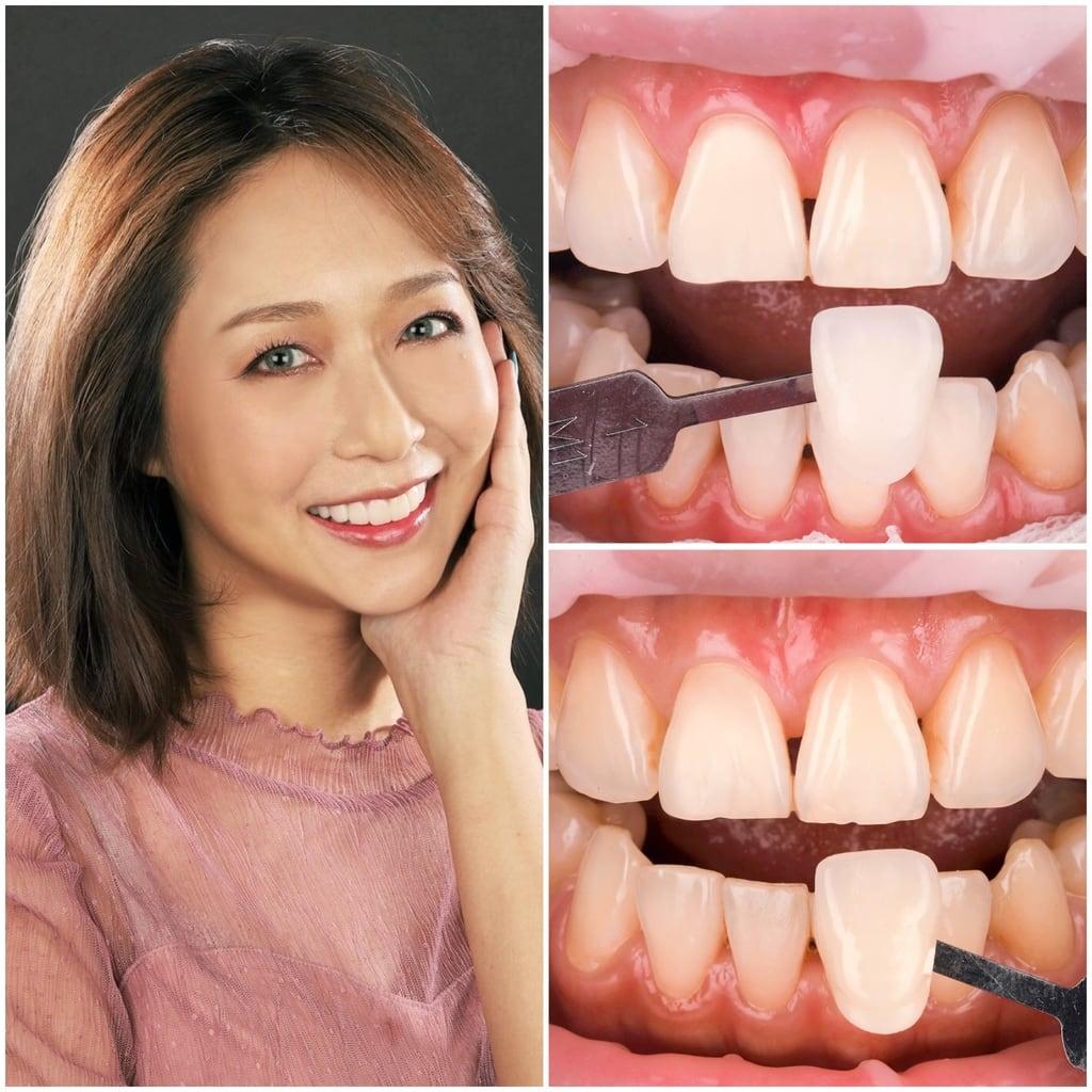 前牙美學專家-沈志容醫師推薦案例-網紅克萊兒牙齒美白全記錄-冷光美白
