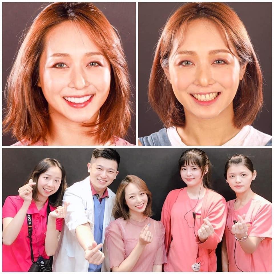 前牙美學專家-沈志容醫師推薦案例-網紅克萊兒牙齒美白全記錄-前後比較與工作人員合照