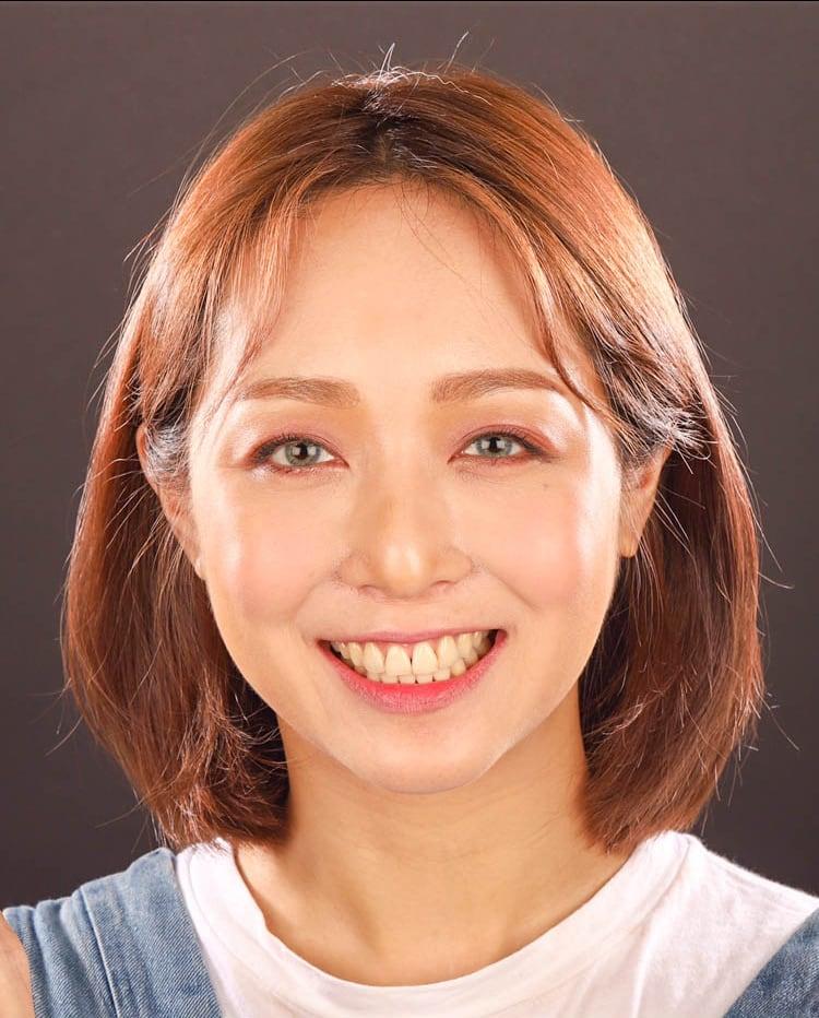 前牙美學專家-沈志容醫師推薦案例-網紅克萊兒牙齒美白全記錄-原本的牙齒偏黃與門牙呈倒三角