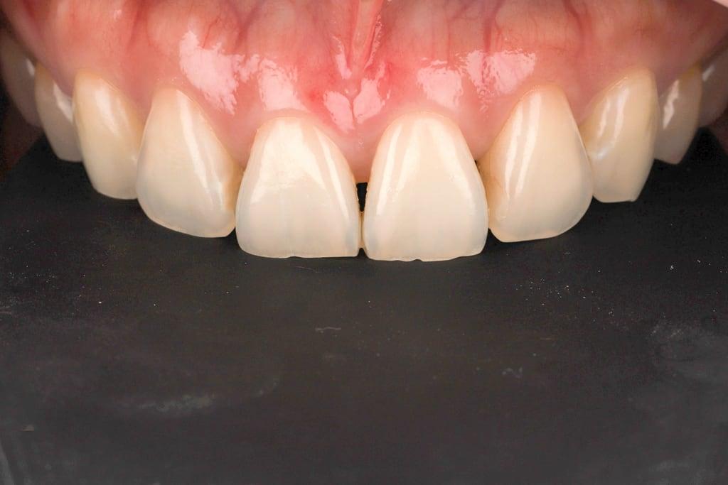 前牙美學專家-沈志容醫師推薦案例-網紅克萊兒牙齒美白全記錄-原本的牙齦