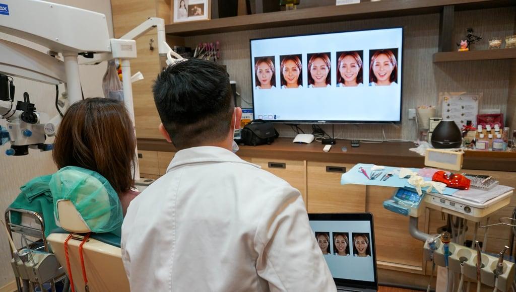 前牙美學專家-沈志容醫師推薦案例-網紅克萊兒牙齒美白全記錄-各種笑容的微笑曲線