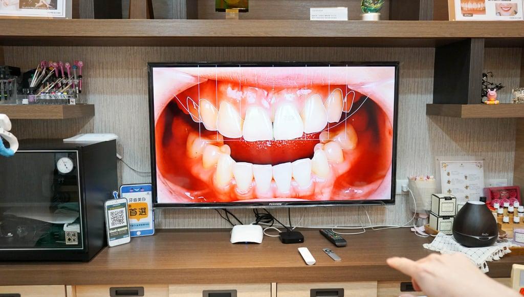 前牙美學專家-沈志容醫師推薦案例-網紅克萊兒牙齒美白全記錄-我原本的牙齒居然是歪的
