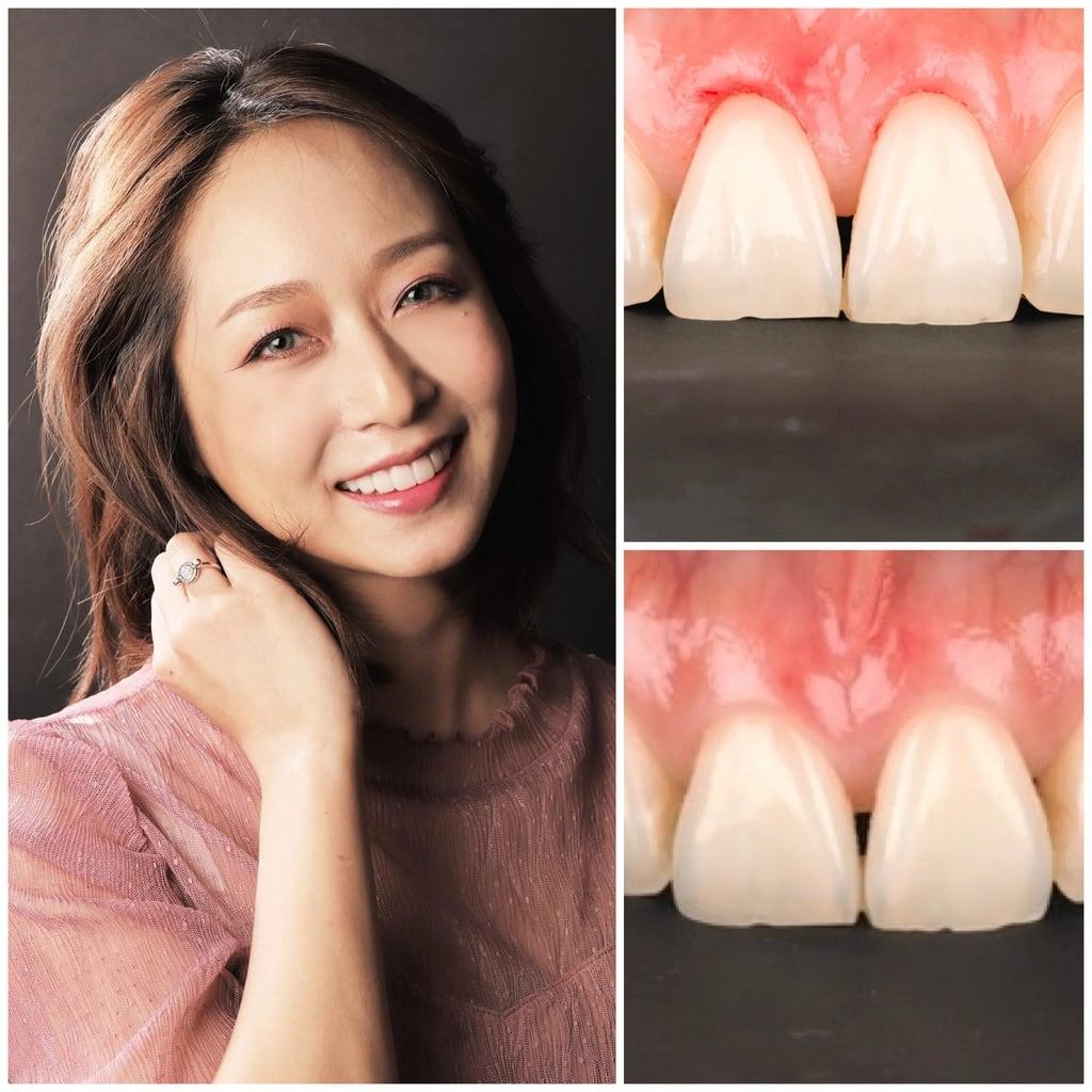 前牙美學專家-沈志容醫師推薦案例-網紅克萊兒牙齒美白全記錄-牙冠增長術