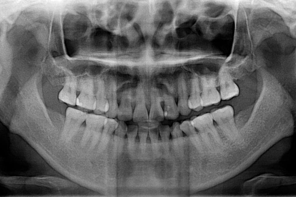 前牙美學專家-沈志容醫師推薦案例-網紅克萊兒牙齒美白全記錄-牙齒的X光照