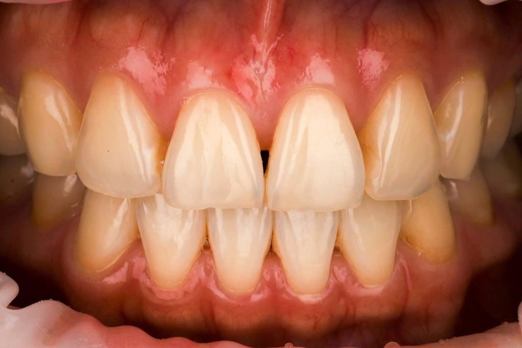 前牙美學專家-沈志容醫師推薦案例-網紅克萊兒牙齒美白全記錄-美白前黃牙特寫