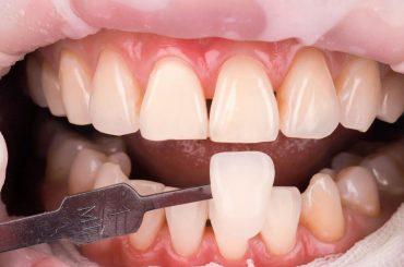 美女部落客克萊兒的牙齒美白心得-part 2.牙齒冷光美白