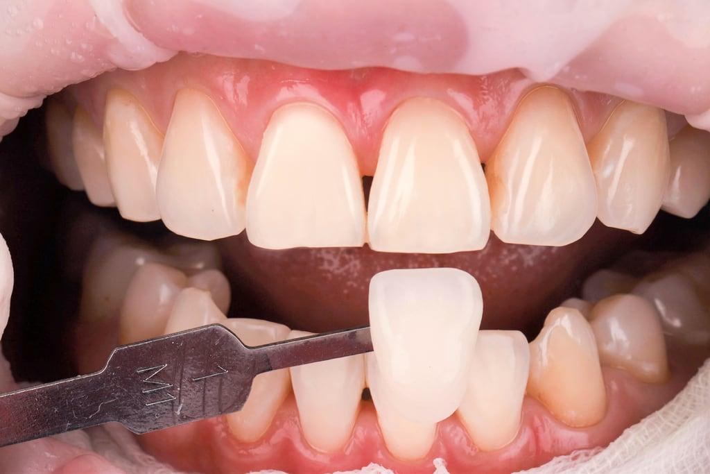 前牙美學專家-沈志容醫師推薦案例-網紅克萊兒牙齒美白全記錄-美白後變成M1