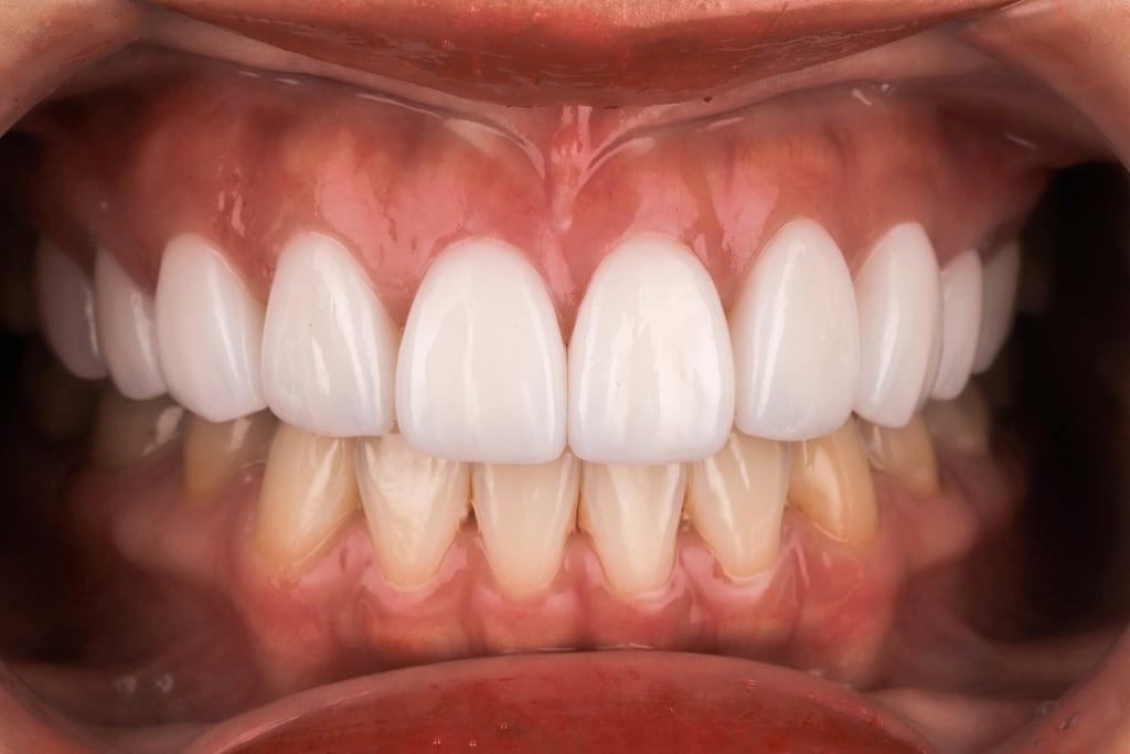 陶瓷貼片心得-桃園牙齒美白推薦牙醫沈志容醫師-上下排的色差在完成上排後才比較明顯