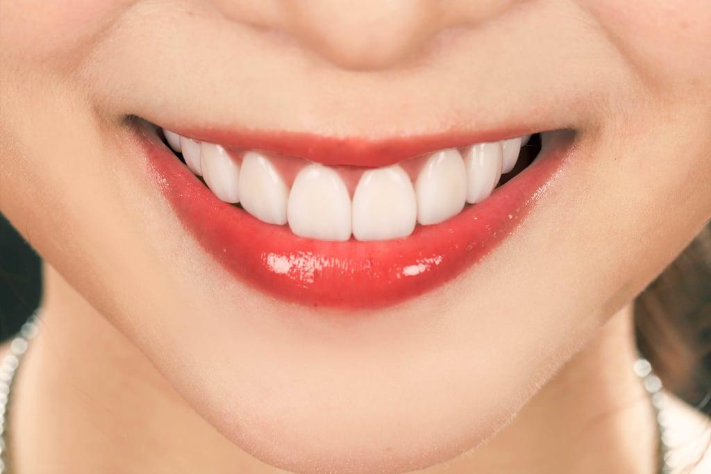 陶瓷貼片心得-桃園牙齒美白推薦牙醫沈志容醫師-正面照