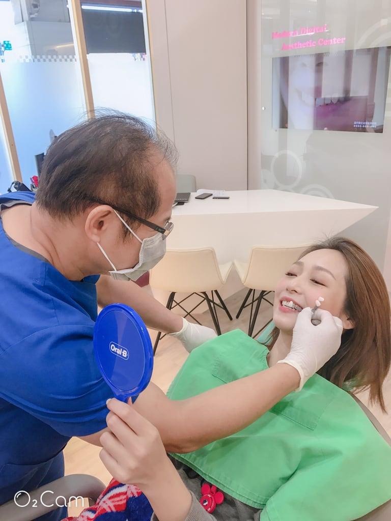 陶瓷貼片心得-桃園牙齒美白推薦牙醫沈志容醫師-比較一下是否跟理想中的一樣