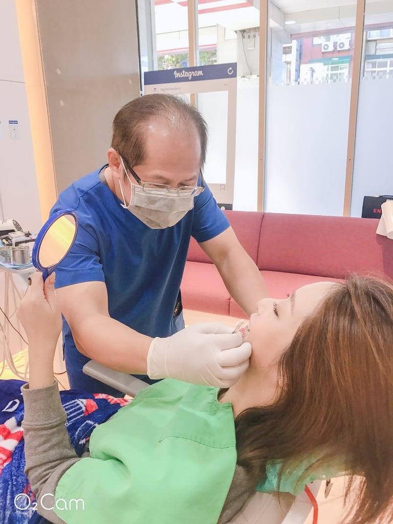 陶瓷貼片心得-桃園牙齒美白推薦牙醫沈志容醫師-療程結束來看作品