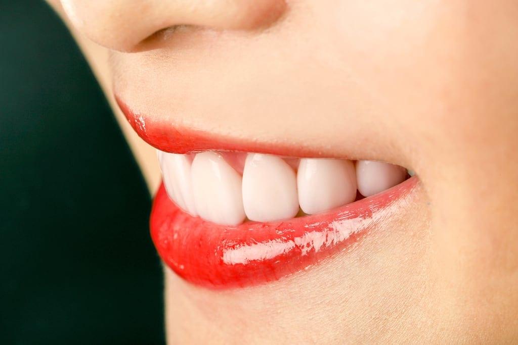 陶瓷貼片心得-桃園牙齒美白推薦牙醫沈志容醫師-陶瓷貼片完成真是太感動了