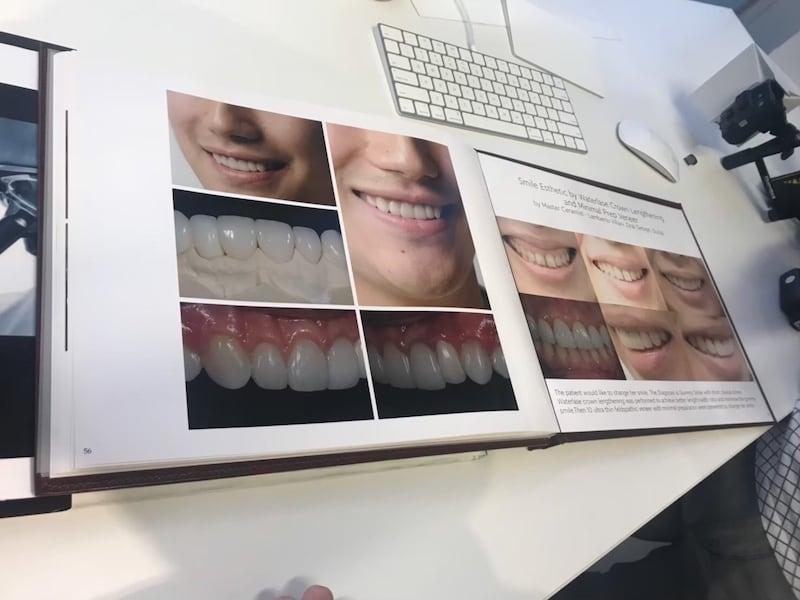 牙齒美白-香港牙醫價格-台灣全瓷冠瓷牙貼片推薦-香港謝德安醫師牙齒美白牙科美學案例