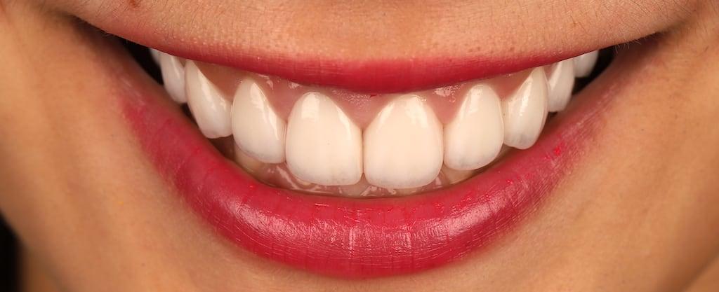 瓷牙貼片價格-牙齒貼片缺點-牙齒美白推薦診所選擇-使用原廠E max CAD製作的瓷牙貼片-顏色美觀自然擬真-牙齦貼合牙周狀況良好