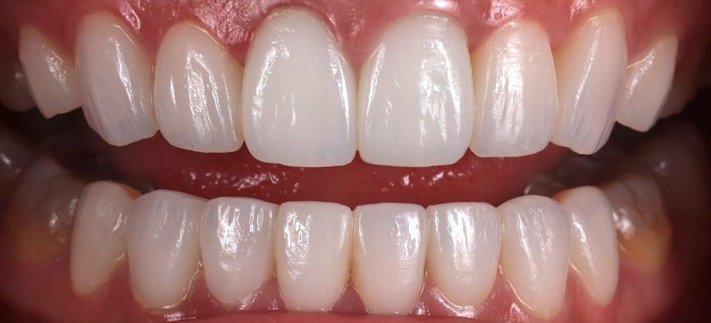 瓷牙貼片價格-牙齒貼片缺點-牙齒美白推薦診所選擇-使用德國大廠Dentsply Sirona的Celtra Duo-顏色雪白自然