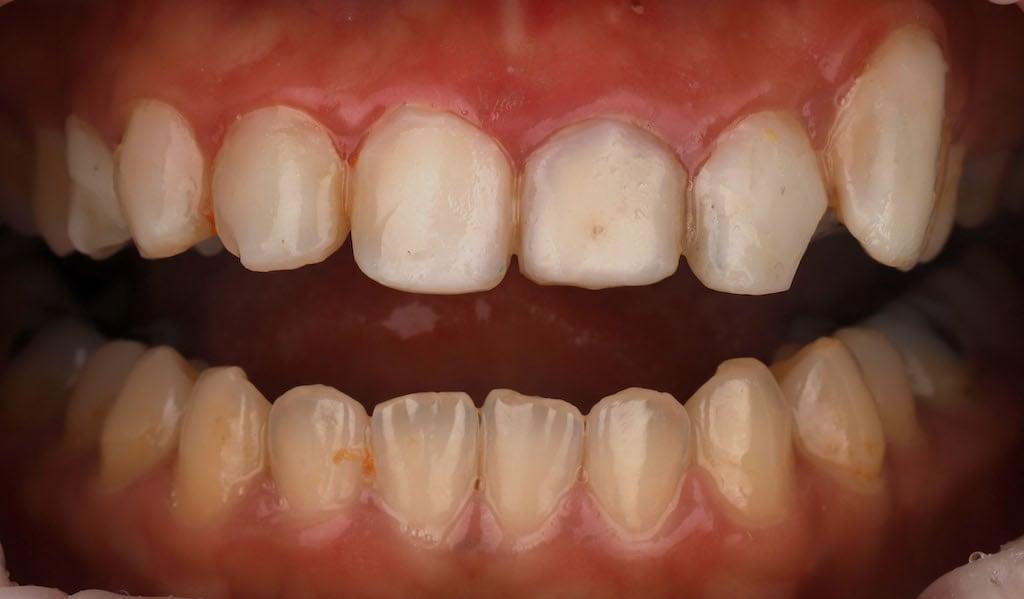 瓷牙貼片價格-牙齒貼片缺點-牙齒美白推薦診所選擇-密醫工作室的樹脂貼片大小不對稱-多處破損染色-牙齦發炎