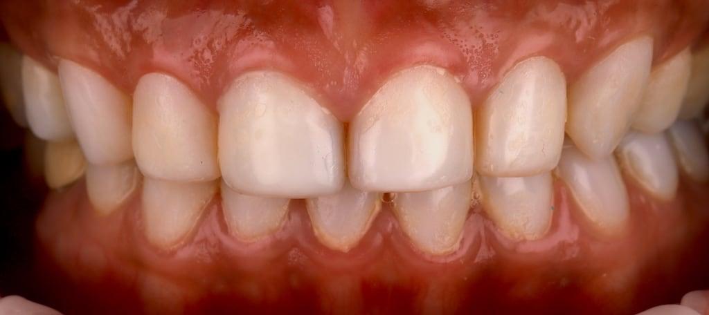 瓷牙貼片價格-牙齒貼片缺點-牙齒美白推薦診所選擇-密醫美白工作室的樹脂貼片造成上下排牙齦發炎