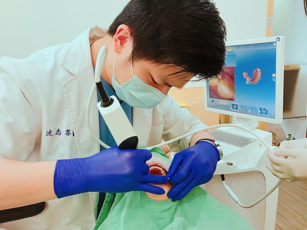 瓷牙貼片價格-牙齒貼片缺點-牙齒美白推薦診所選擇-沈志容醫師操作口掃機進行掃描-掃描畫面會即時顯示在螢幕上