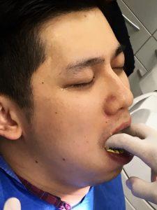 瓷牙貼片價格-牙齒貼片缺點-牙齒美白推薦診所選擇-沈志容醫師親身體驗傳統印模