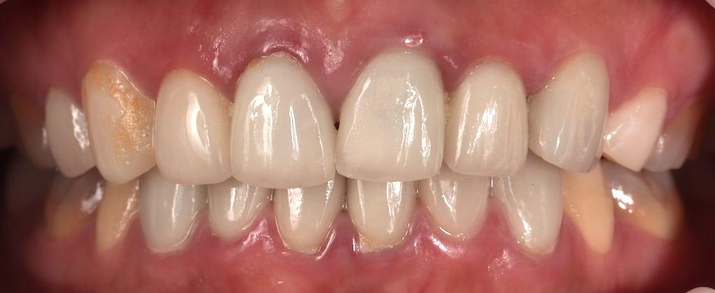 瓷牙貼片價格-牙齒貼片缺點-牙齒美白推薦診所選擇-治療前舊的貼片-右側犬齒脫落-門牙歪斜沒對稱-後方牙齒色差